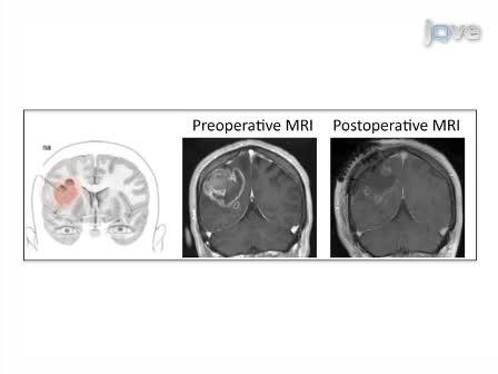 Method for Novel Anti-Cancer Drug Development using Tumor Explants of Surgical Specimens