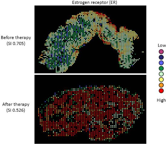 Heterogeneity Mapping of Protein Expression in Tumors using