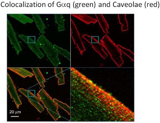 Measuring Fast Calcium Fluxes in Cardiomyocytes | Protocol