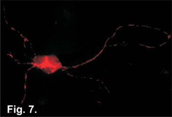 Isolation and Culture of Hippocampal Neurons from Prenatal