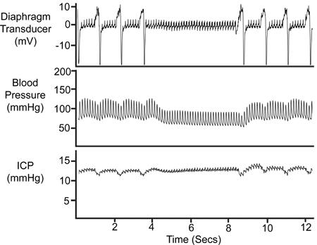 Ratón de medición de presión intracraneal