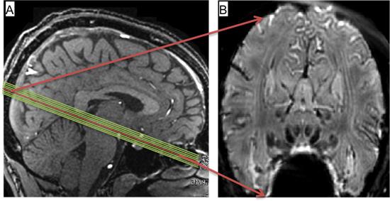 vita fläckar i hjärnan