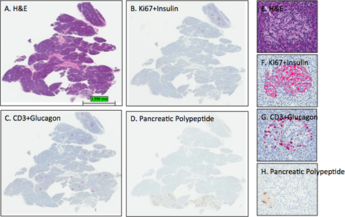 Staining Protocols for Human Pancreatic Islets   Protocol