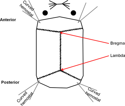 The Rat Brain in Stereotaxic Coordinates