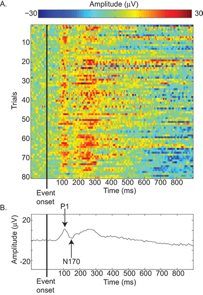 EEG aansluiting metingen