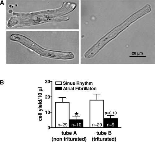 Isolation of Human Atrial Myocytes for Simultaneous