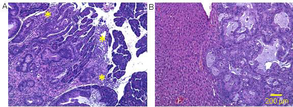 Bioluminescent Orthotopic Model of Pancreatic Cancer
