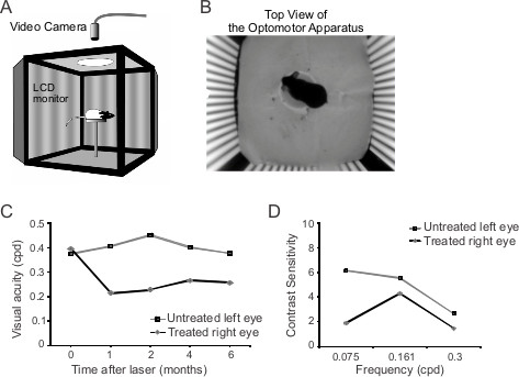 A Laser-induced Mouse Model of Chronic Ocular Hypertension