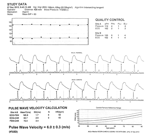 Carotid Femoral Pulse Wave Velocity Waveforms From And Arterial Sites Are Displayed The Foot Of Each Waveform Corresponding
