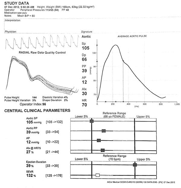 grosor y rigidez de la íntima media carotídea en relación con la diabetes tipo 2 en chino