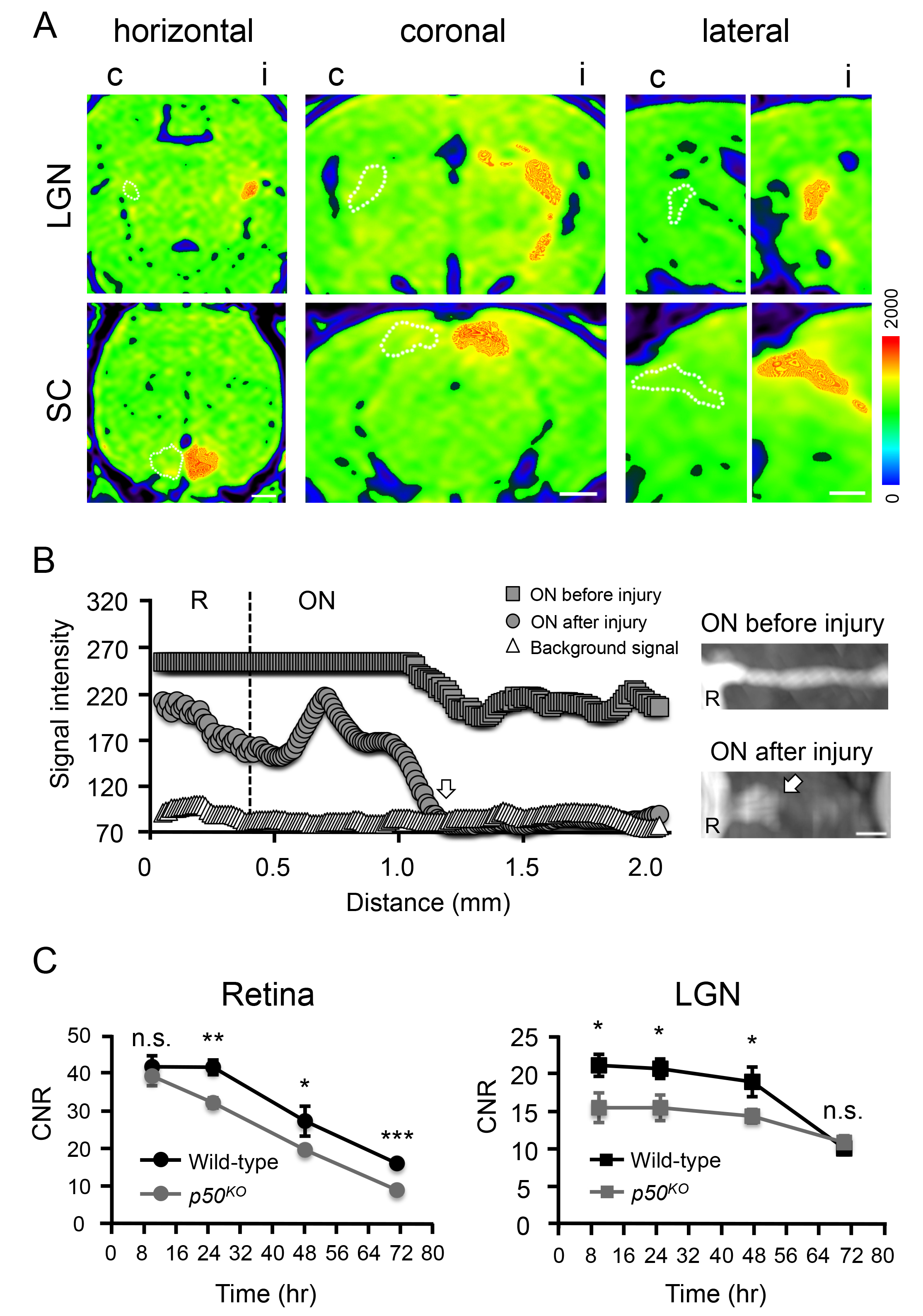In vivo Imaging of Optic Nerve Fiber Integrity by Contrast
