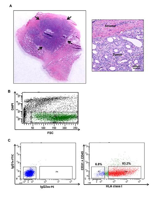 colorazione eosina biopsia prostata