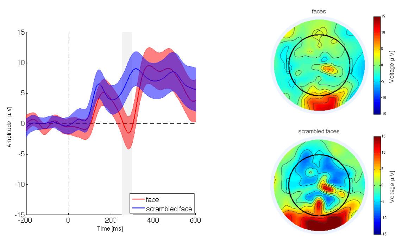 Cortical Source Analysis of High-Density EEG Recordings in Children