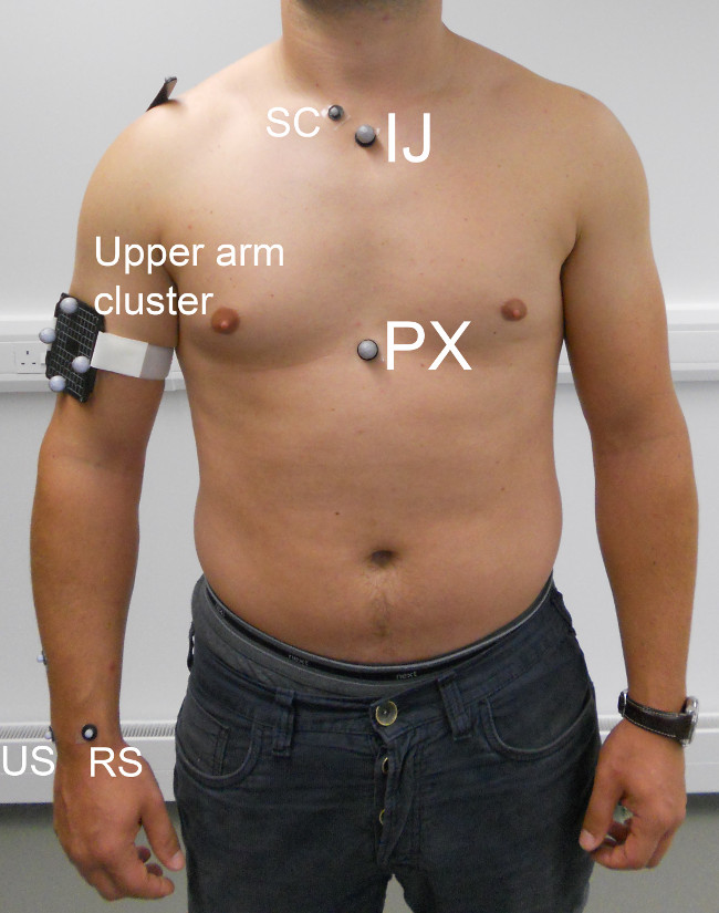 Measurement of Dynamic Scapular Kinematics Using an Acromion