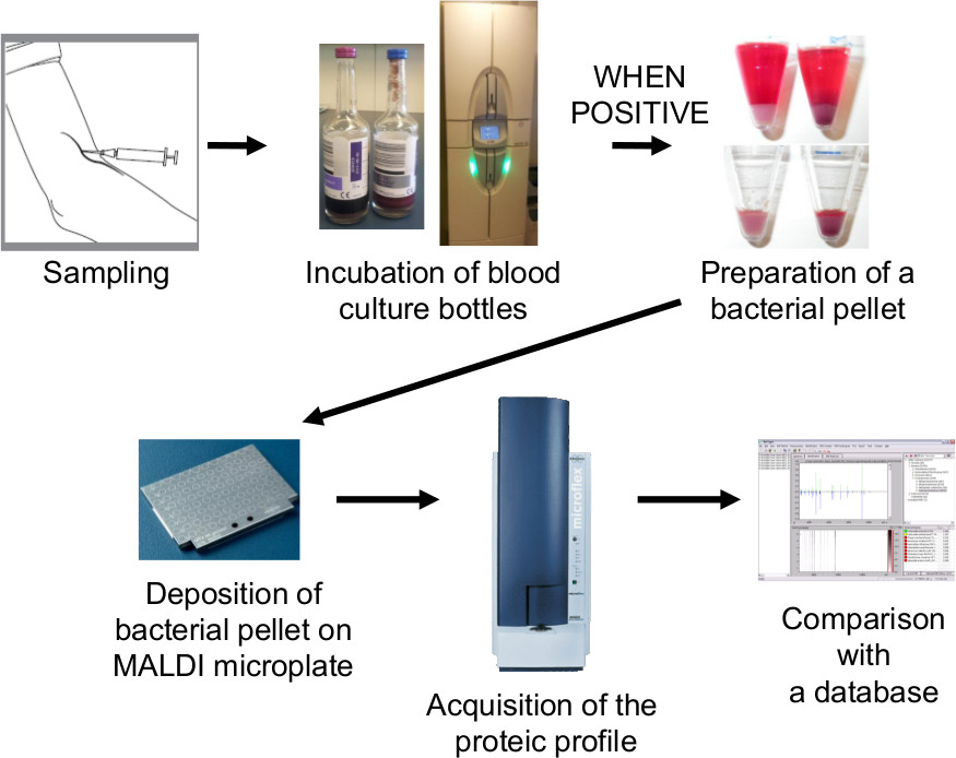 Preparation of a Blood Culture Pellet for Rapid Bacterial