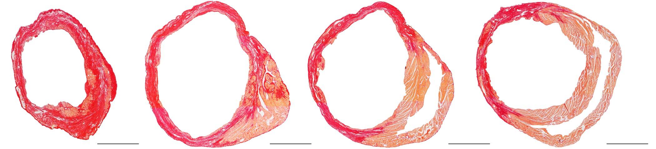 Permanent Ligation Of The Left Anterior Descending Coronary Artery