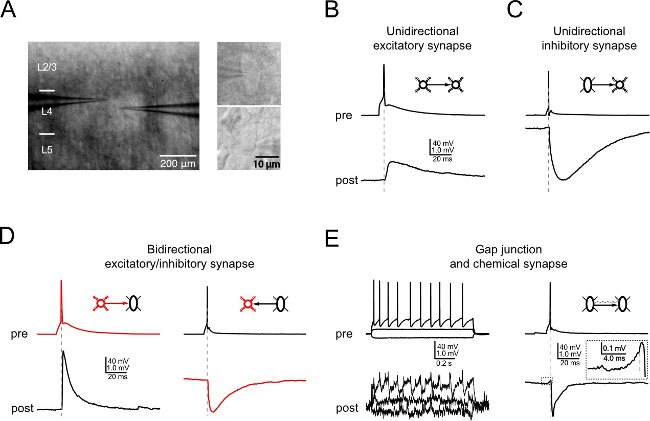Electrophysiological and Morphological Characterization of