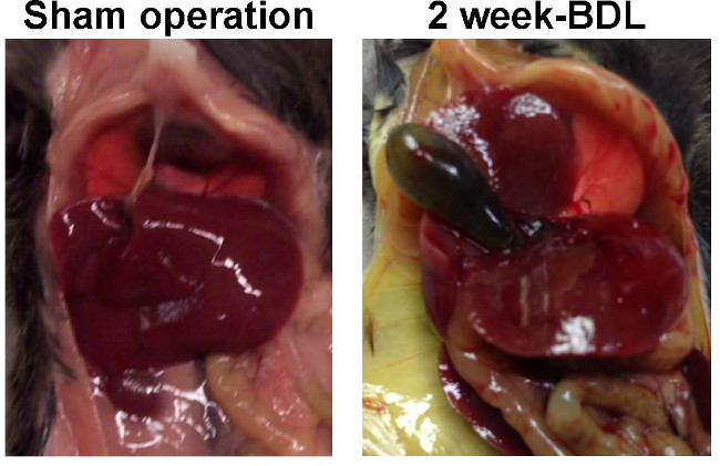 Bile Duct Ligation in Mice: Induction of Inflammatory Liver