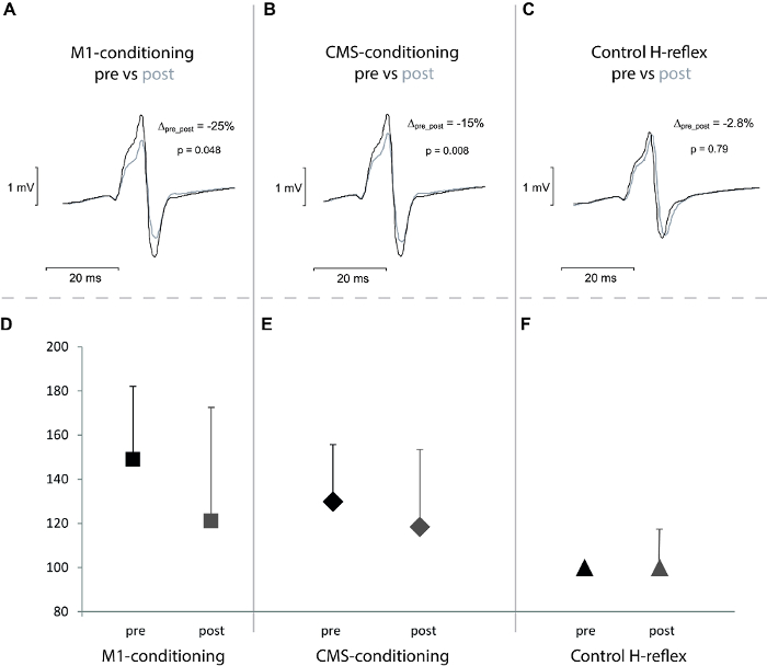 Non-invasive Assessment of Changes in Corticomotoneuronal