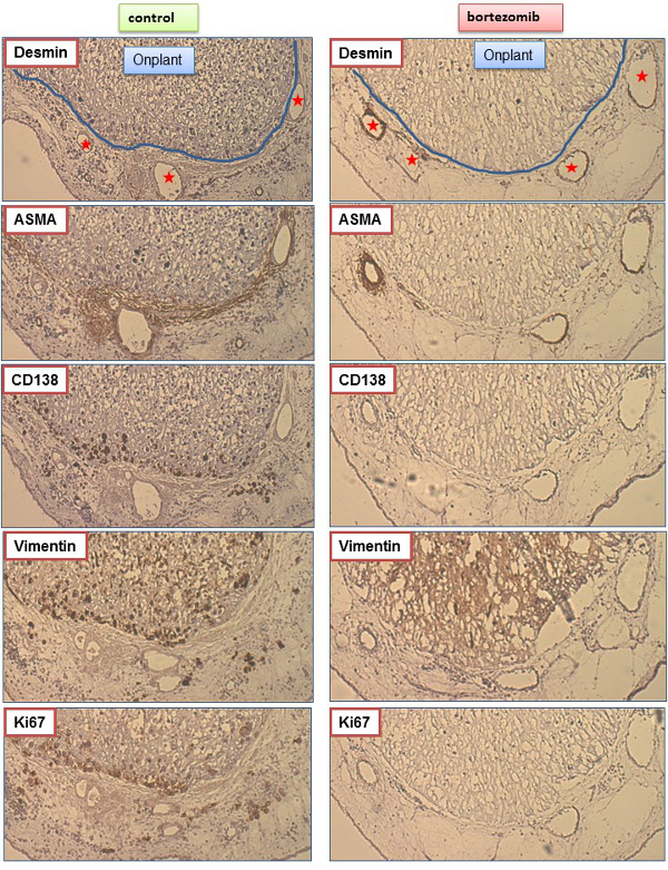 Establishment Of A Human Multiple Myeloma Xenograft Model In The