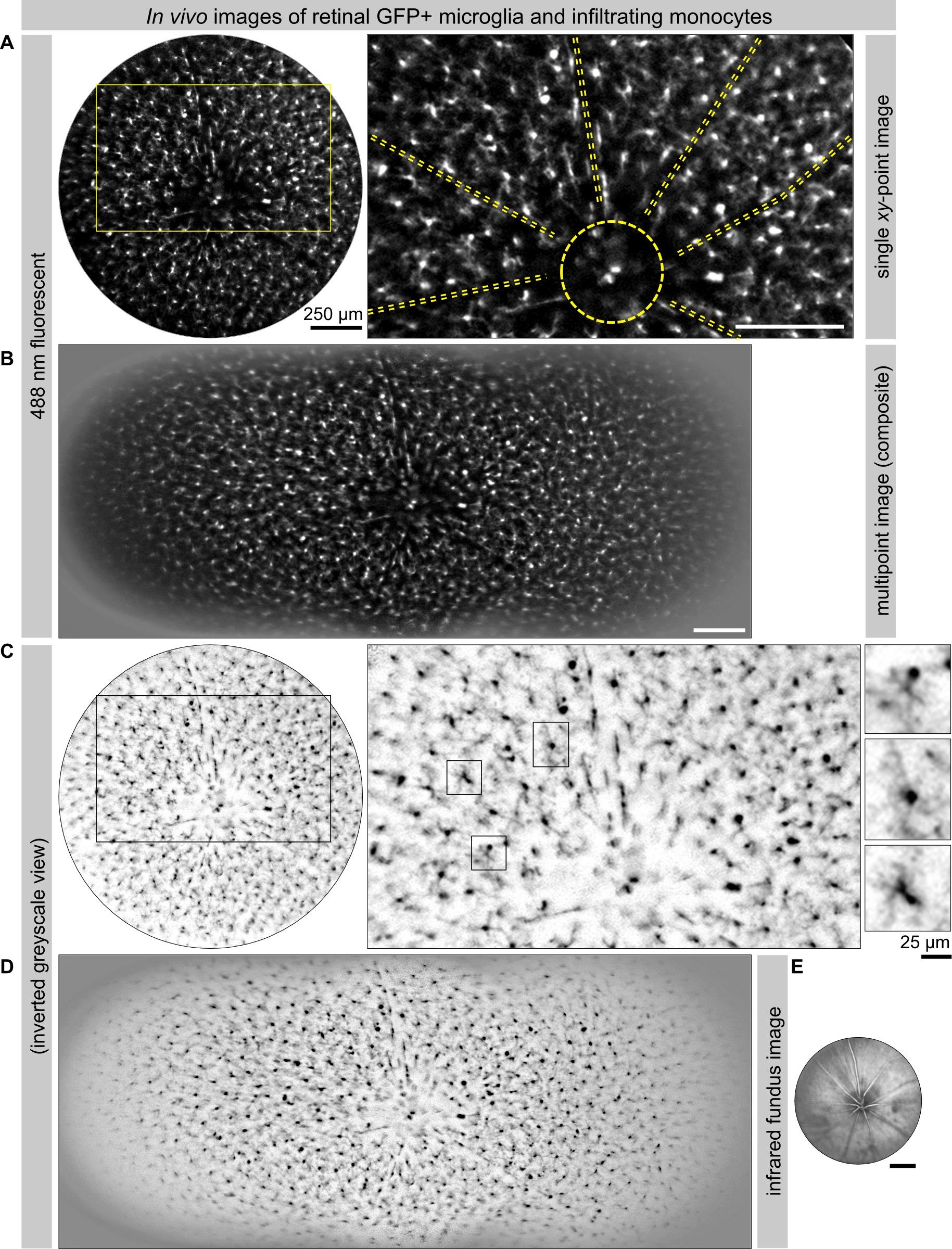 1c94b9319 الشكل 5: عالية الدقة تصور CX3CR1- GFP + الخلايا الدبقية الصغيرة / المترجمة  حيدات لشبكية العين الماوس الداخلية التي كتبها متحد البؤر الحية التصوير  الضوئي ...