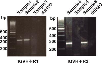 VDJ-Seq: Deep Sequencing Analysis of Rearranged Immunoglobulin Heavy