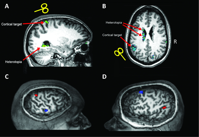 A Multimodal Imaging- and Stimulation-based Method of