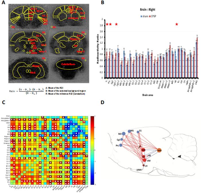 Autoradiographic Measurements of [14C]-Iodoantipyrine in Rat