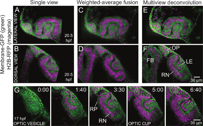 Using Light Sheet Fluorescence Microscopy to Image Zebrafish