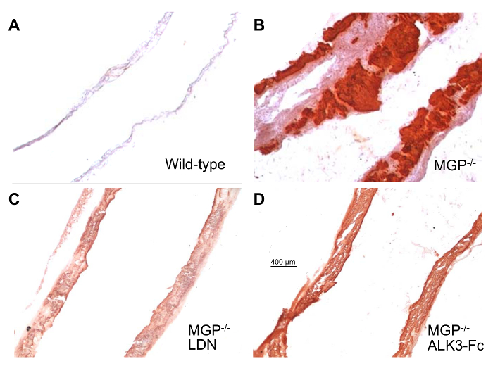 Calcification of Vascular Smooth Muscle Cells and Imaging of