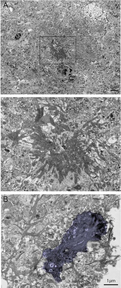 Correlative Light and Electron Microscopy to Study Microglial