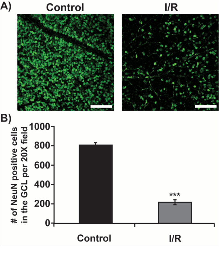 A Mouse Model of Retinal Ischemia-Reperfusion Injury Through