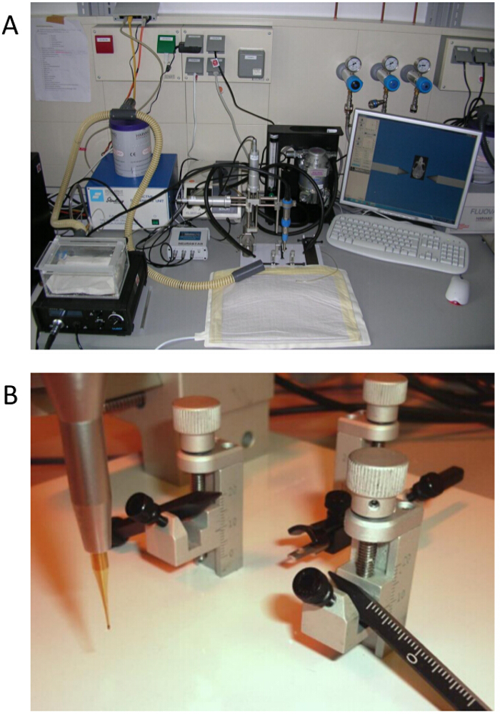 Non Restraining Eeg Radiotelemetry Epidural And Deep