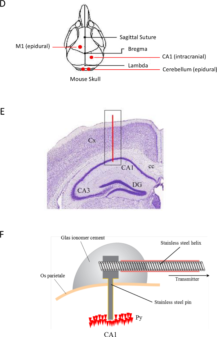 Non-restraining EEG Radiotelemetry: Epidural and Deep