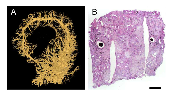 The Arteriovenous Av Loop In A Small Animal Model To Study