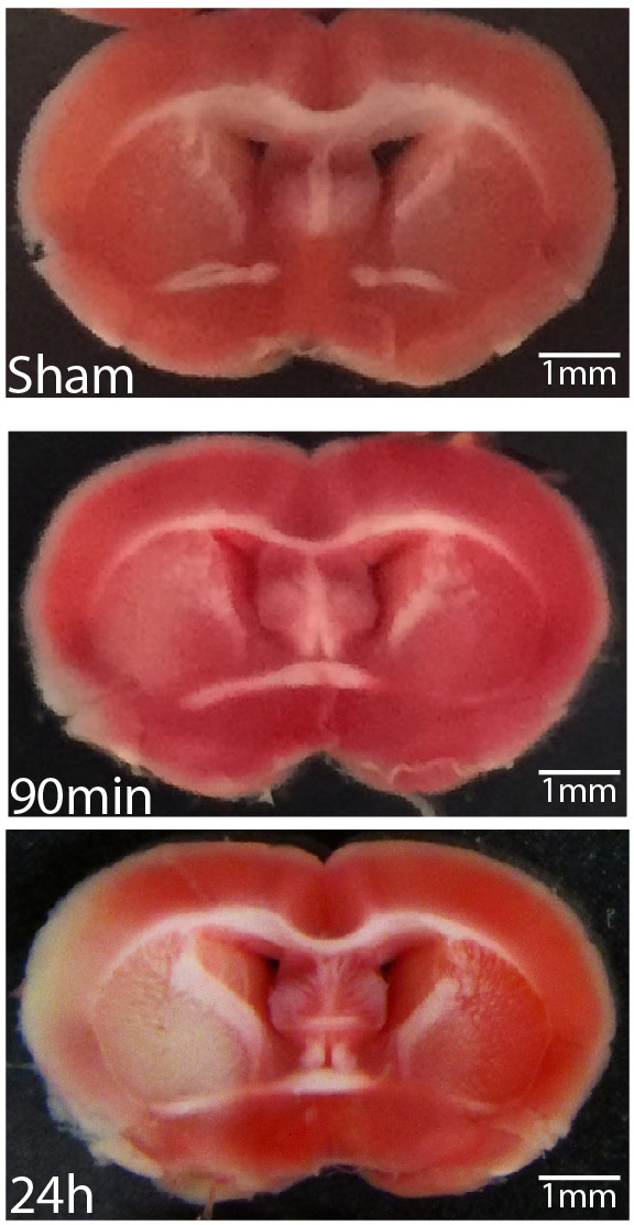 Induction of Ischemic Stroke and Ischemia-reperfusion in Mice Using