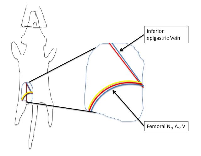 V Diagram Se