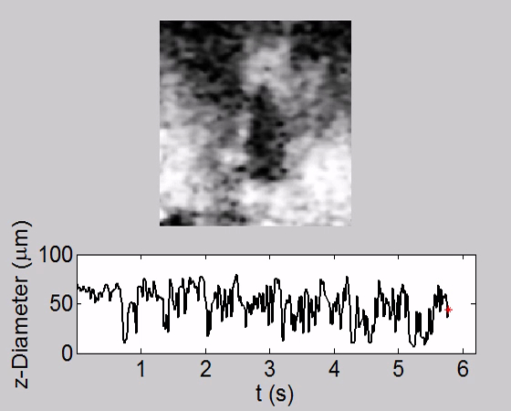 Drosophila Preparation And Longitudinal Imaging Of Heart