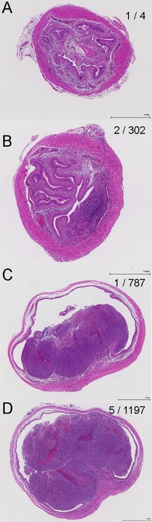 siembra exitosa para el cáncer de próstata