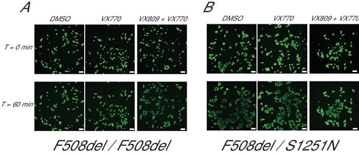 Forskolin-induced Swelling in Intestinal Organoids: An In