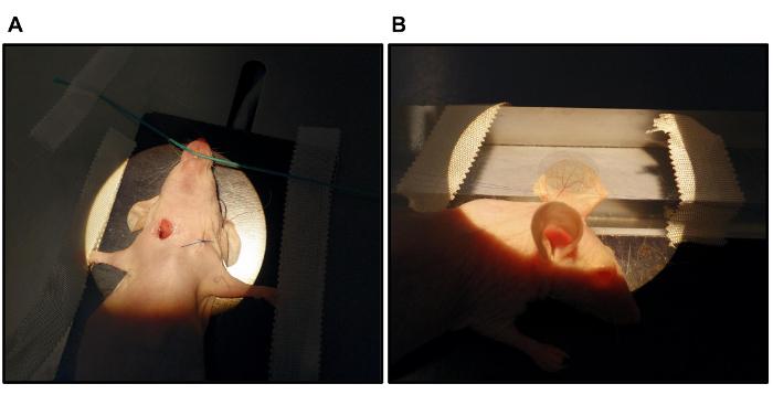 Laser das da das pernas transcutâneo veias tratamento a anatomia