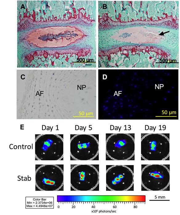An In Vitro Organ Culture Model of the Murine Intervertebral