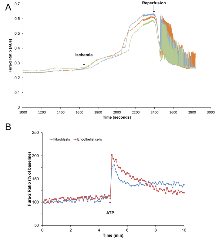 Simultaneous Isolation Of High Quality Cardiomyocytes Endothelial