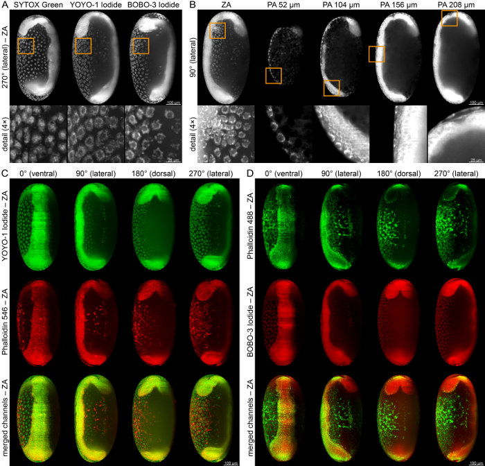 Light Sheet Based Fluorescence Microscopy Of Living Or Fixed And
