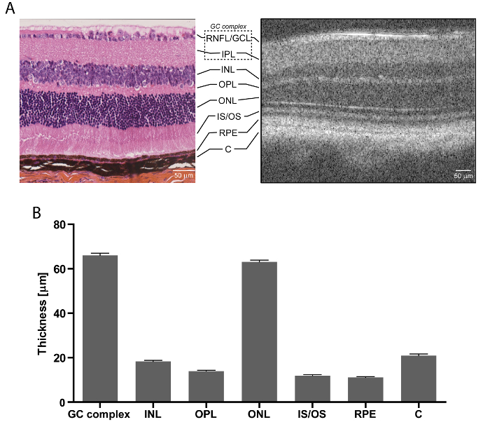 Optical Coherence Tomography: Imaging Mouse Retinal Ganglion