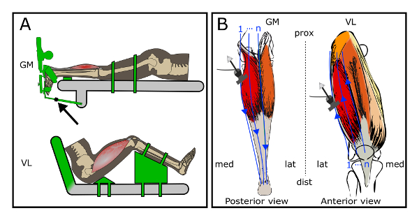 3D Ultrasound Imaging: Fast and Cost-effective Morphometry