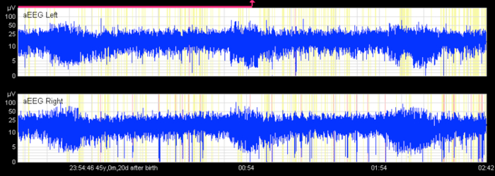 Application of an Amplitude-integrated EEG Monitor (Cerebral ...