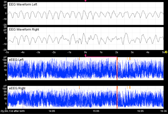 Application of an Amplitude-integrated EEG Monitor (Cerebral ...