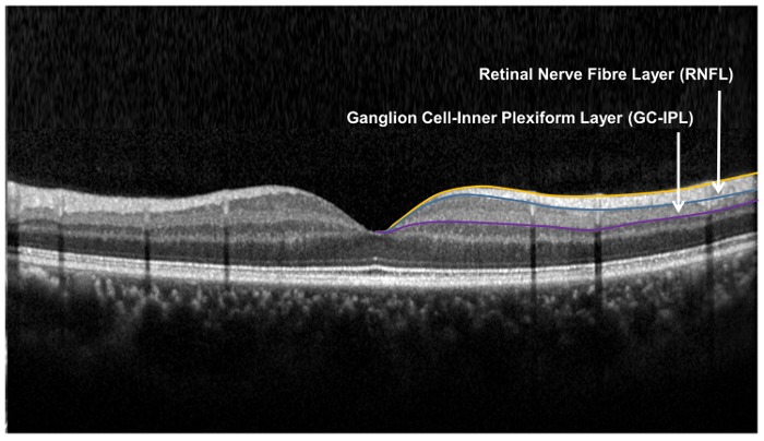Using Retinal Imaging To Study Dementia Protocol Translated To