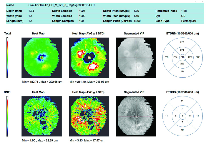 In Vivo Multimodal Imaging and Analysis of Mouse Laser-Induced
